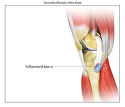 Goosefoot Bursitis Of The Knee