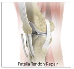 Patella Tendon Repair